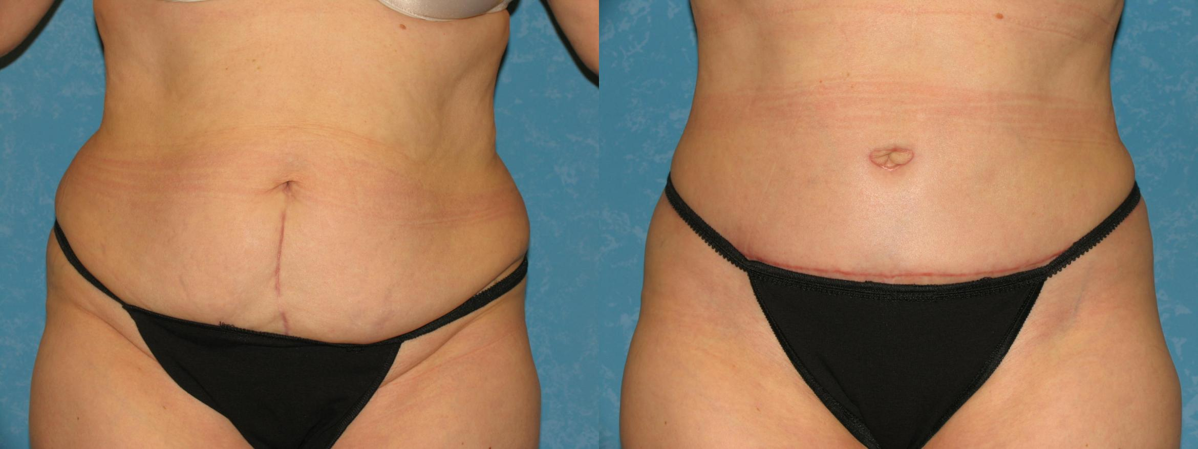 Tummy Tuck Abdominoplasty In Toledo Ohio Dr Craig Colville