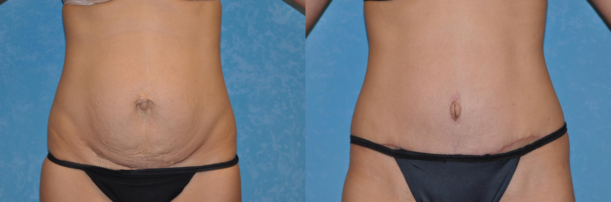 Abdominoplasty Before & After Photo | Toledo, Ohio | Dr. Craig Colville