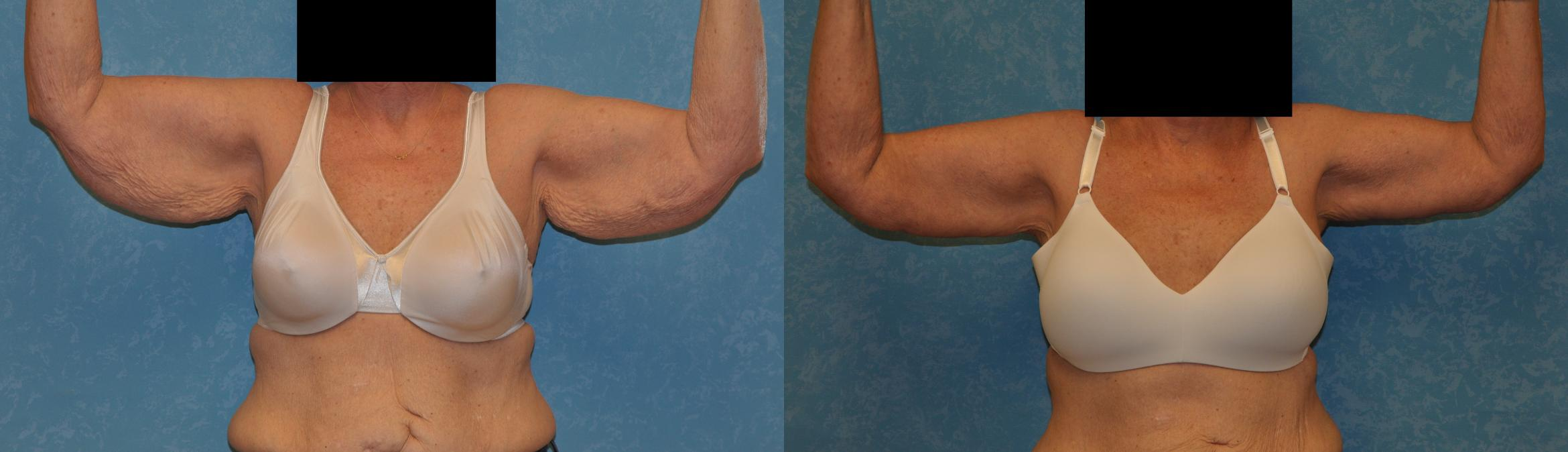 Arm Lift Before & After Photo | Toledo, Ohio | Dr. Craig Colville