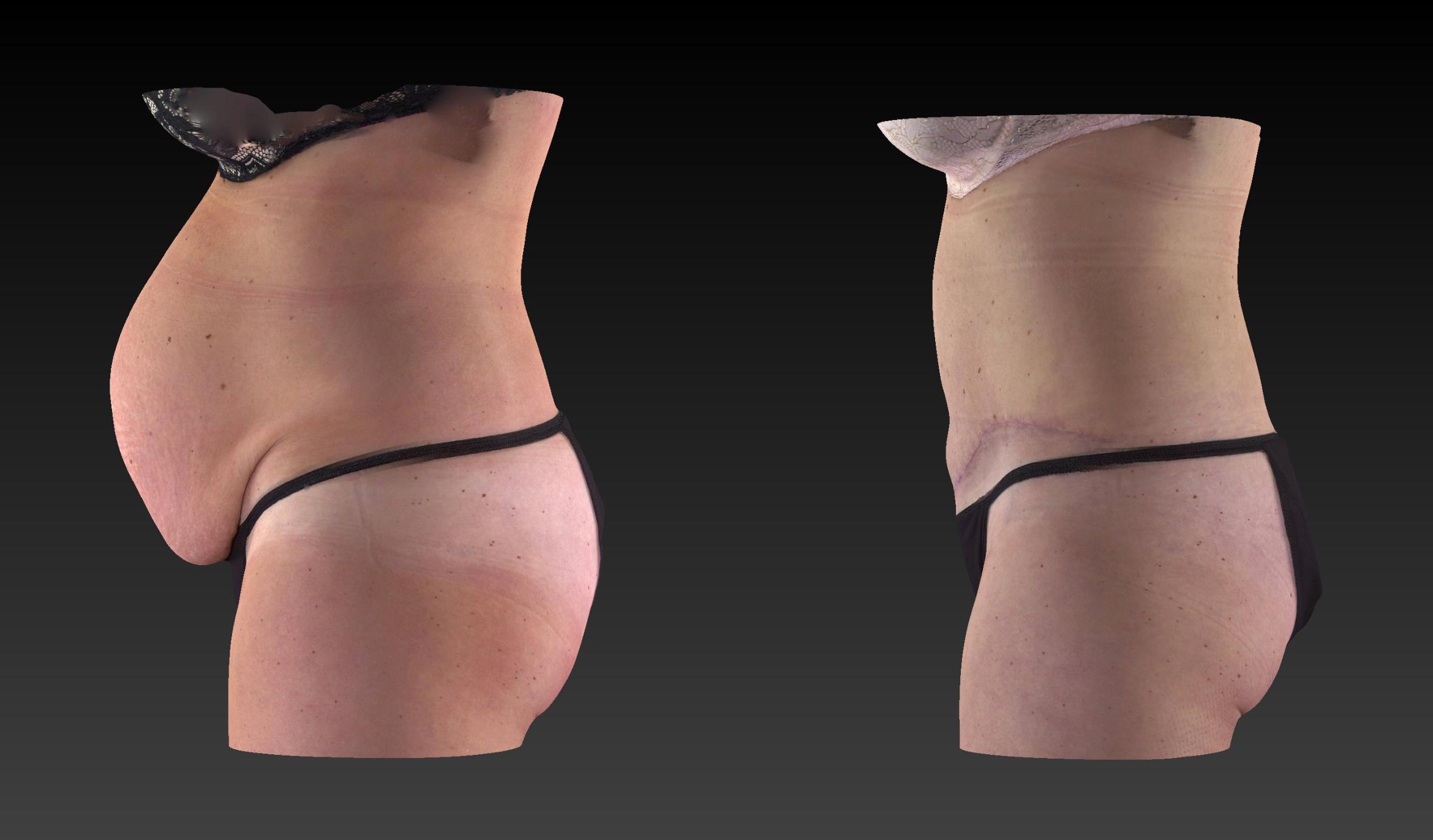 Body Contouring  Procedures Before & After Photo | Toledo, Ohio | Dr. Craig Colville