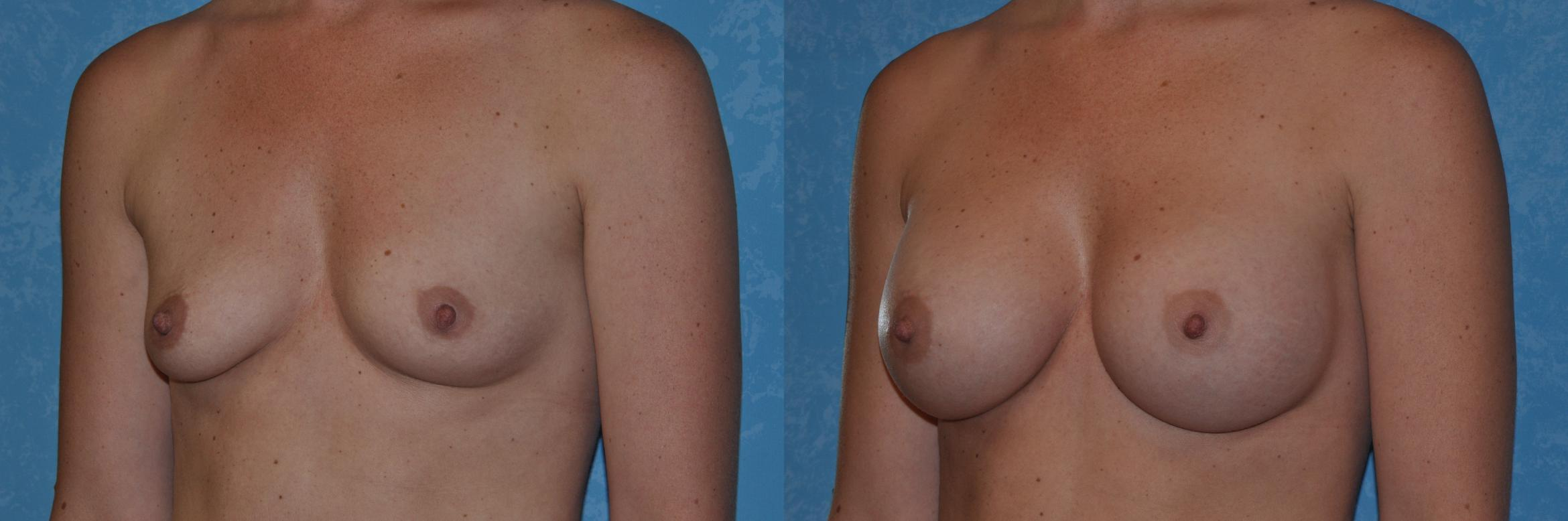 Breast Augmentation Before & After Photo | Toledo, Ohio | Dr. Craig Colville