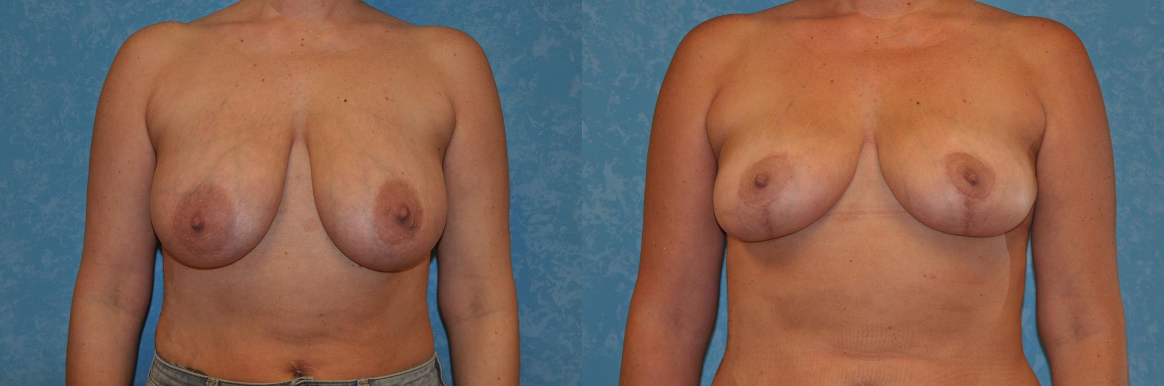 Breast Lift Before & After Photo | Toledo, Ohio | Dr. Craig Colville