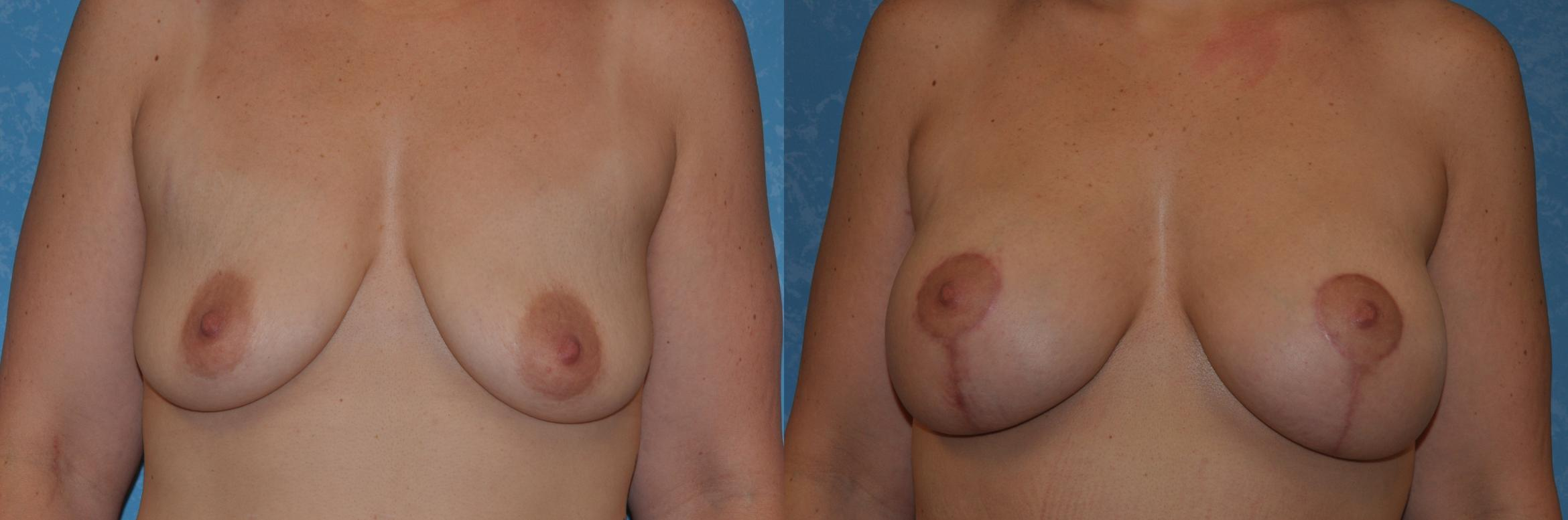 Breast Lift With Implants Before & After Photo | Toledo, Ohio | Dr. Craig Colville