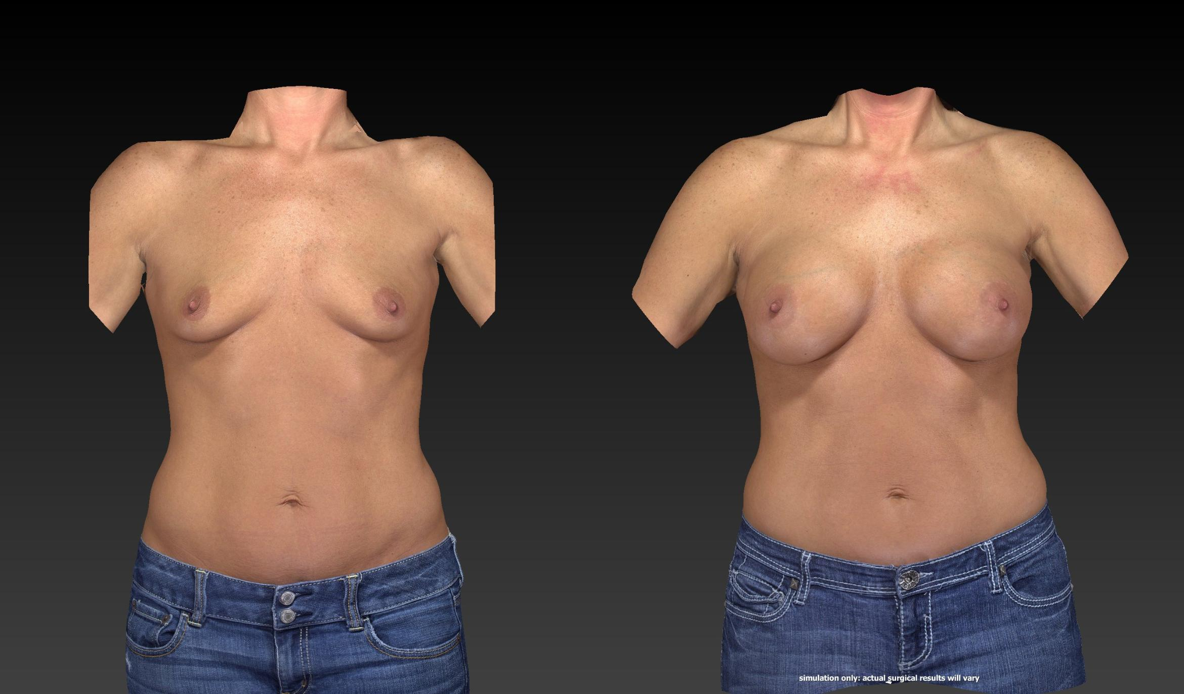 Breast Procedures Before & After Photo | Toledo, Ohio | Dr. Craig Colville