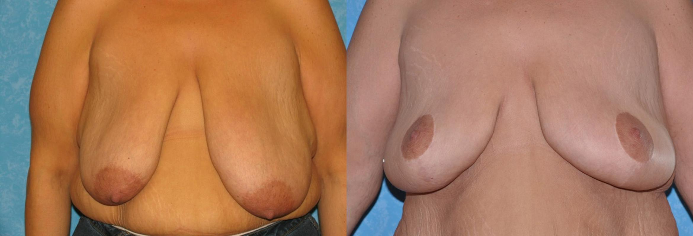 Breast Reduction Before & After Photo | Toledo, Ohio | Dr. Craig Colville