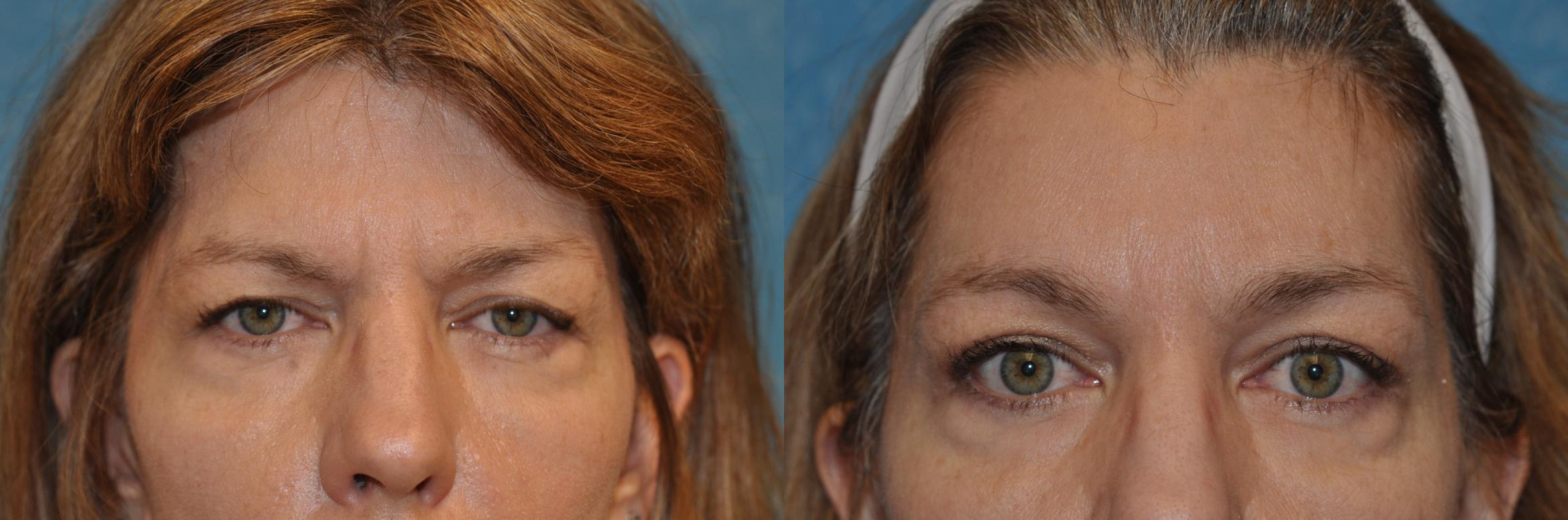 Brow Lift Before & After Photo | Toledo, Ohio | Dr. Craig Colville