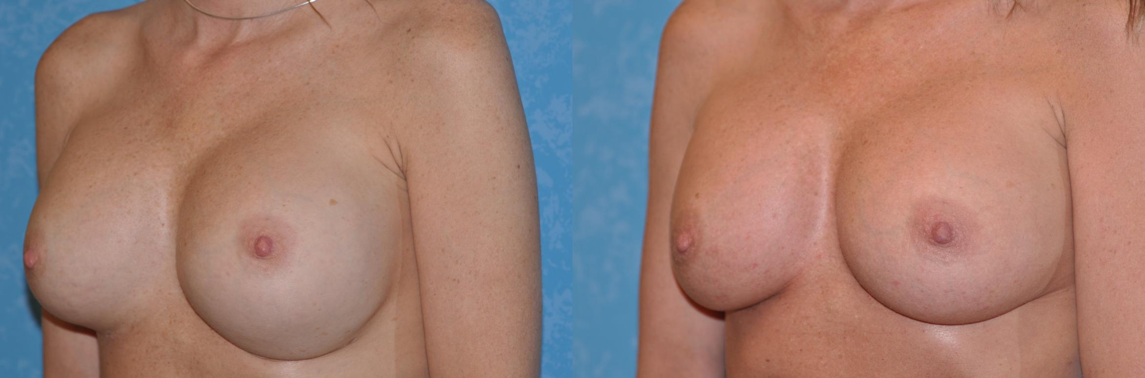 Complex Cases Before & After Photo | Toledo, Ohio | Dr. Craig Colville