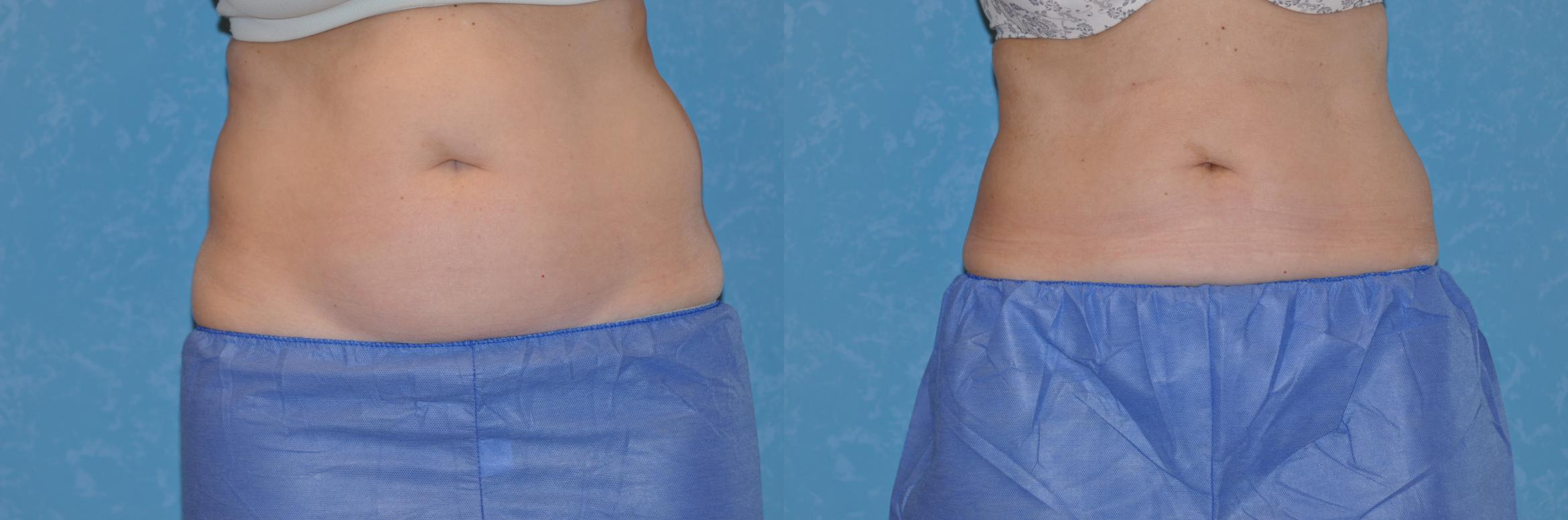 CoolSculpting® Before & After Photo | Toledo, Ohio | Dr. Craig Colville