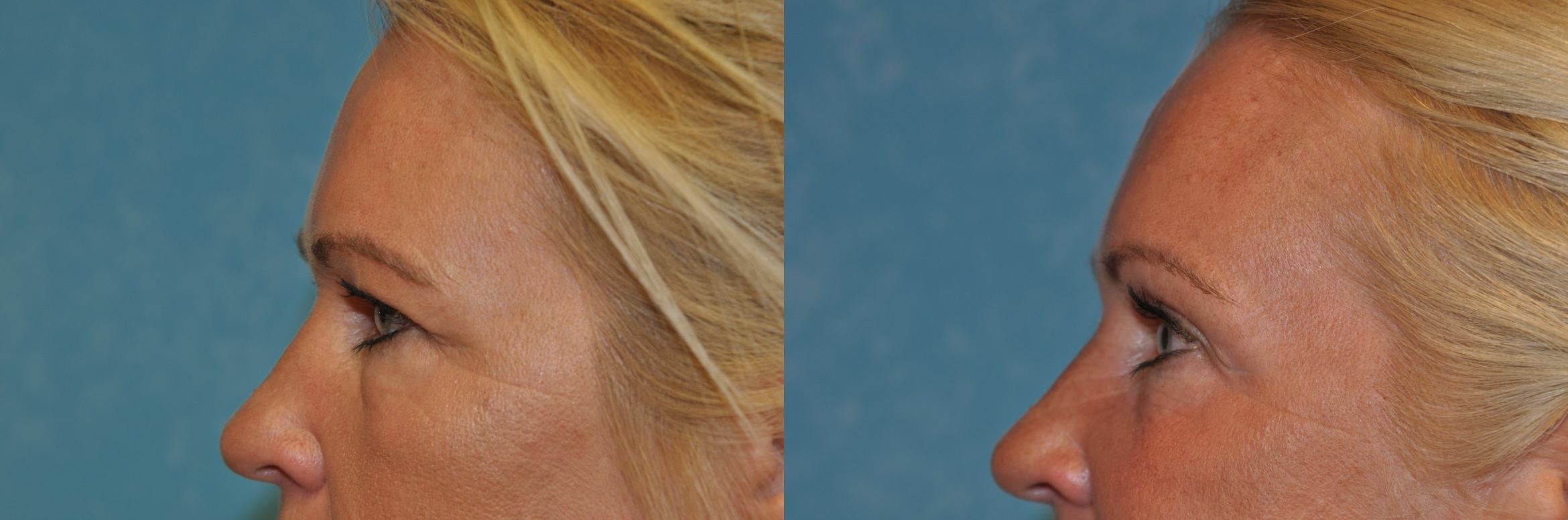 Eyelid Lift Before & After Photo | Toledo, Ohio | Dr. Craig Colville