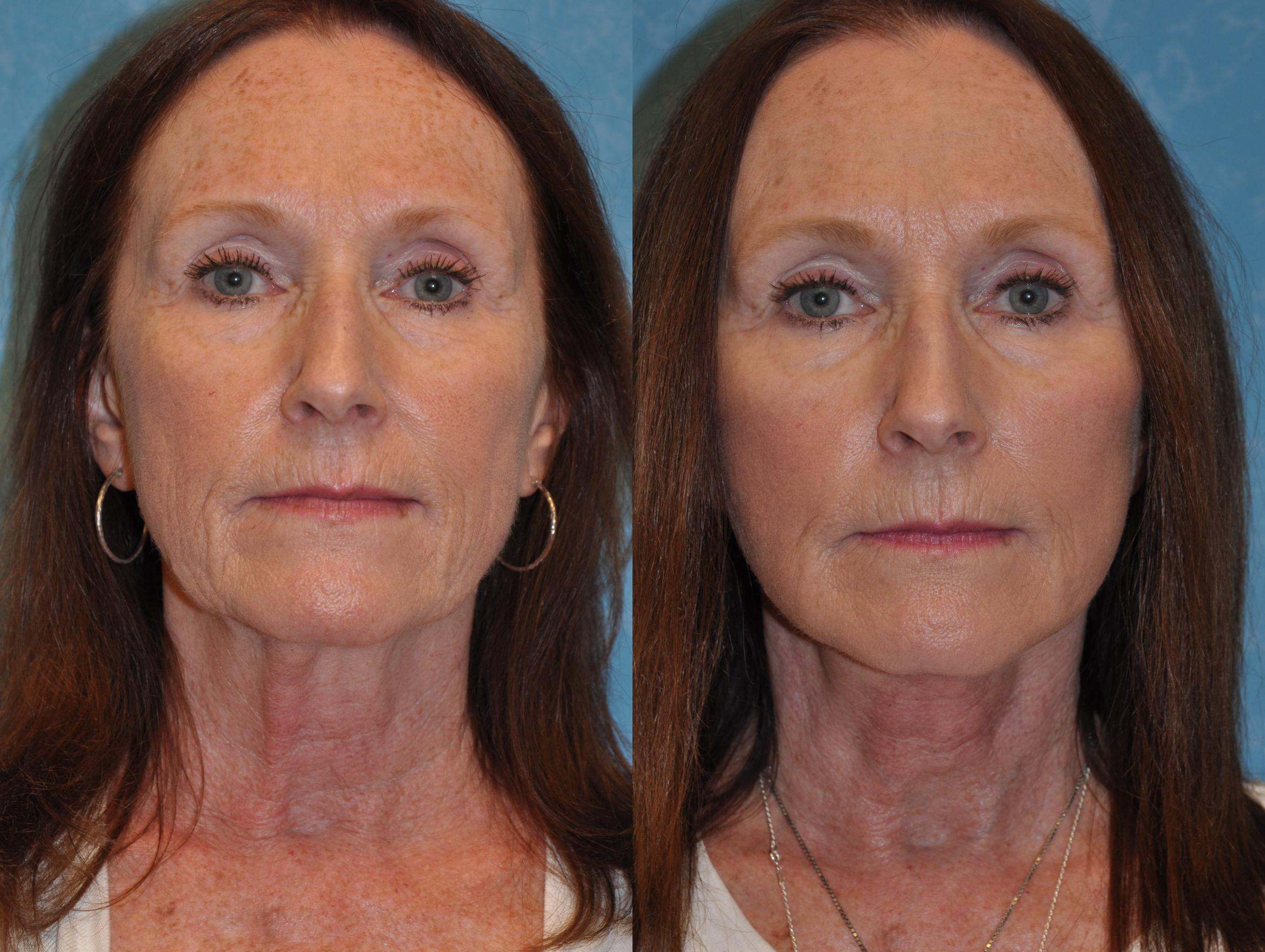 Face Lift Before & After Photo | Toledo, Ohio | Dr. Craig Colville