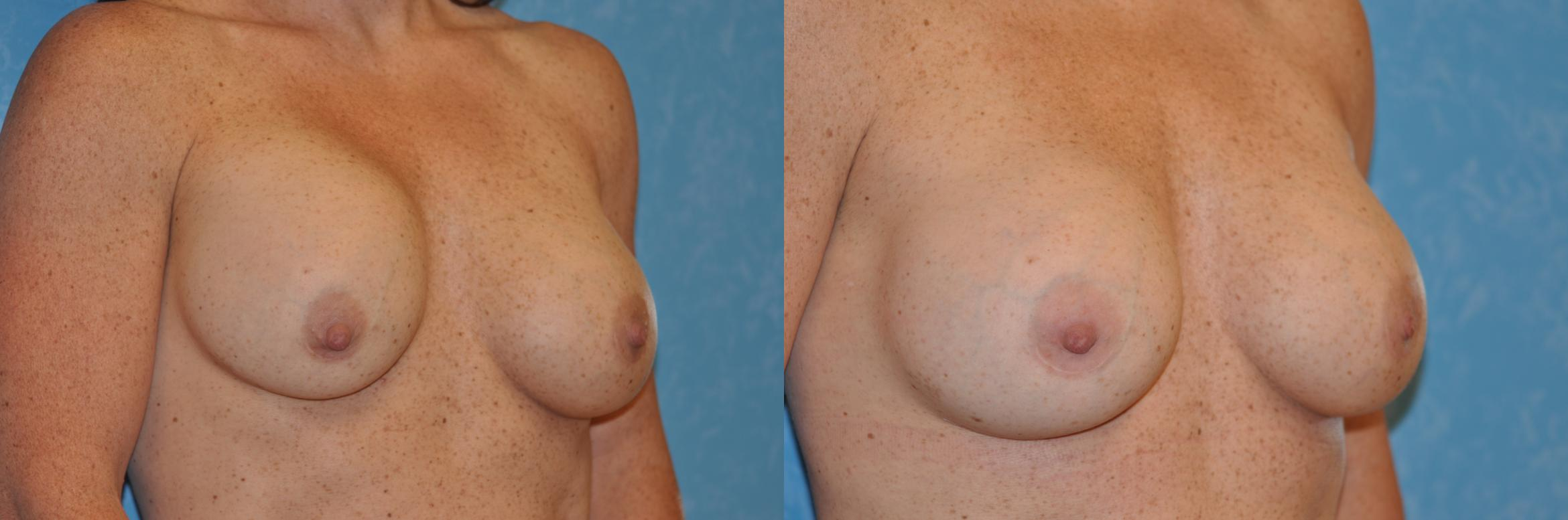 Implant Revision Before & After Photo | Toledo, Ohio | Dr. Craig Colville