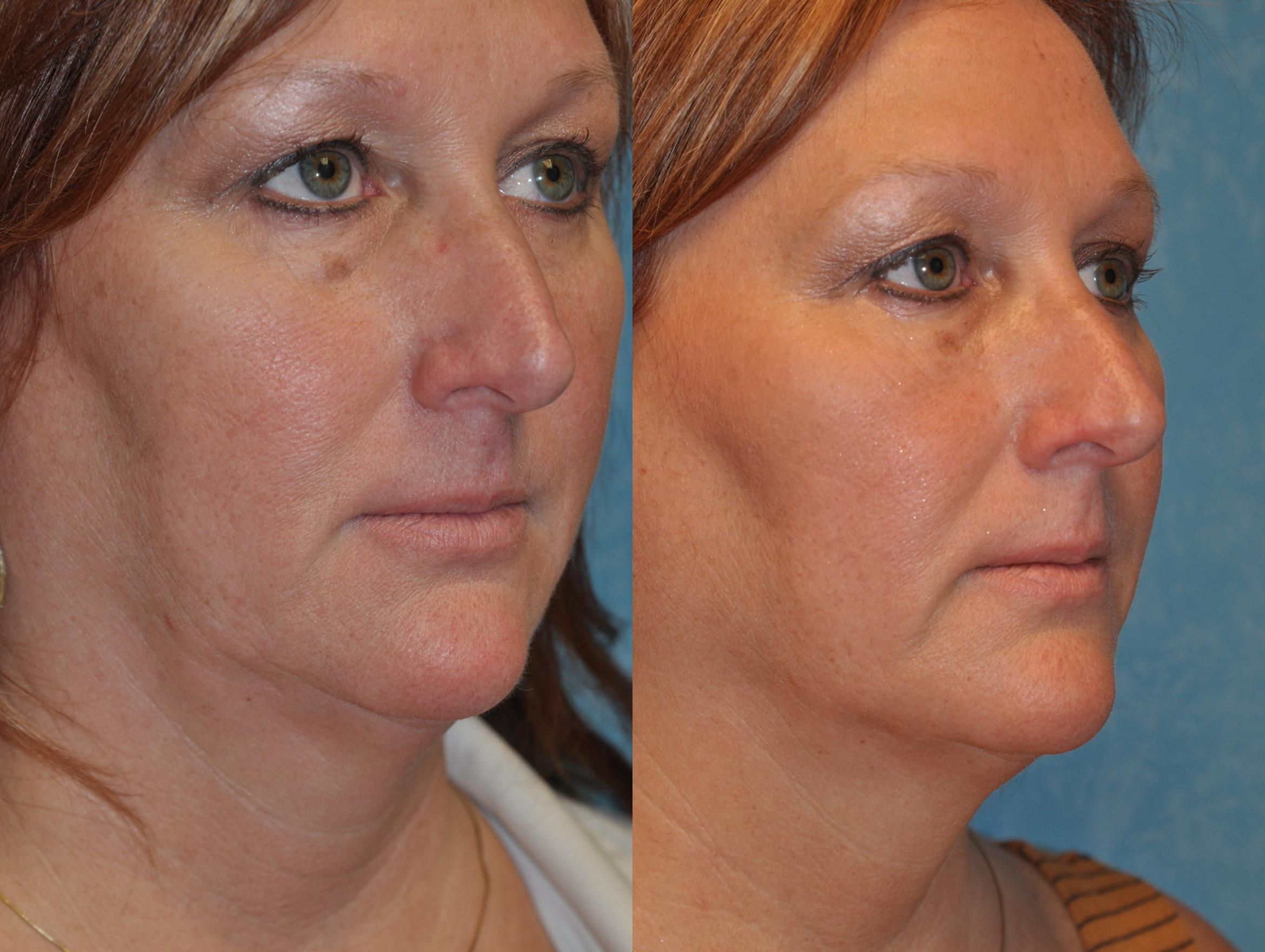 Injectable Treatments Before & After Photo | Toledo, Ohio | Dr. Craig Colville