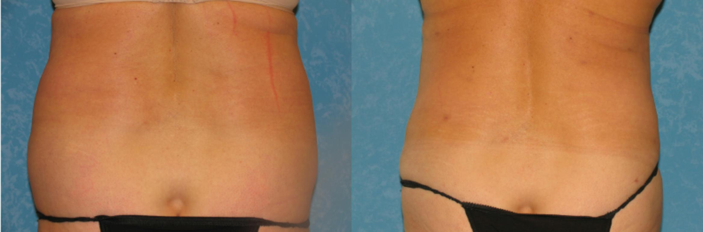 Liposuction Before & After Photo | Toledo, Ohio | Dr. Craig Colville