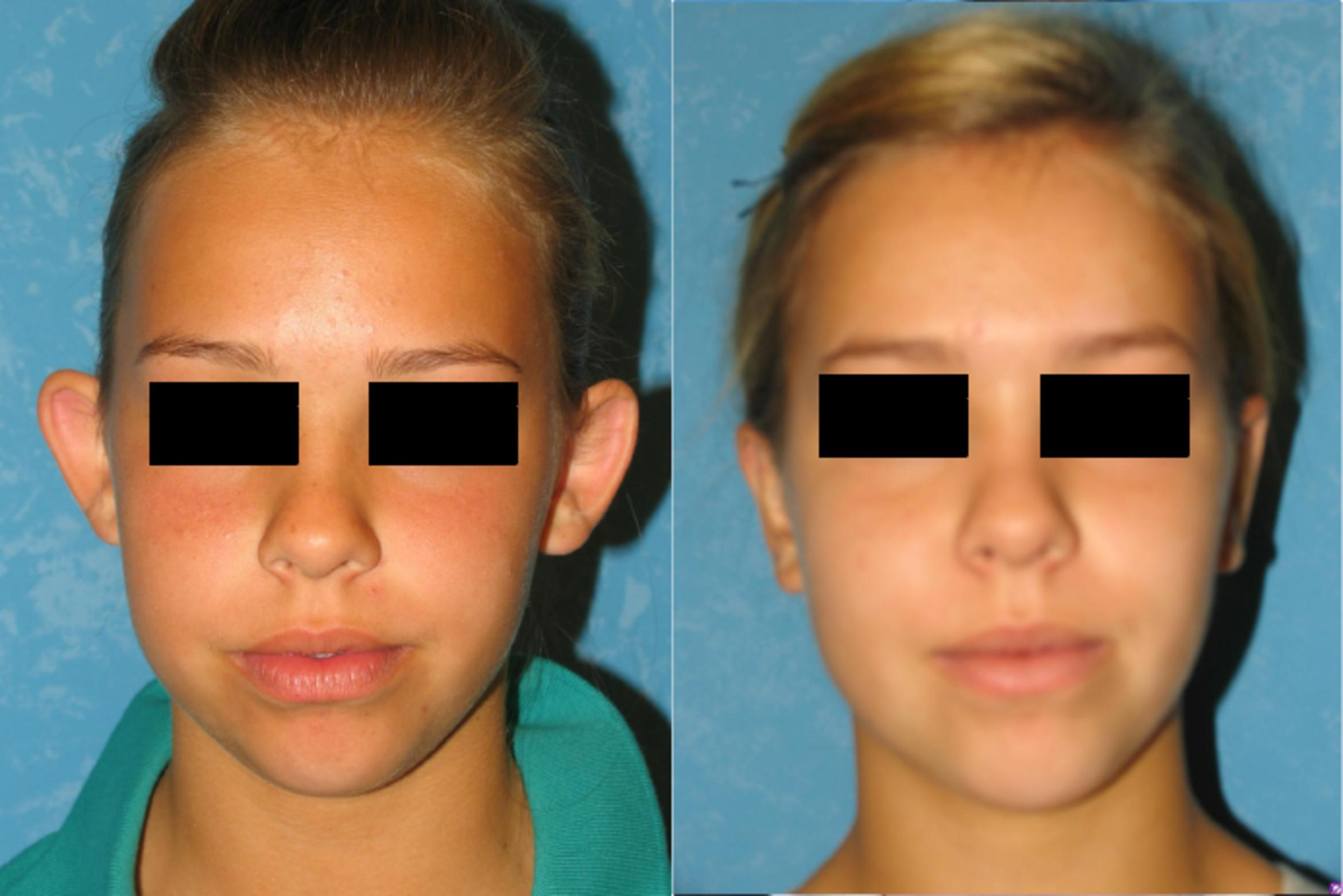 Otoplasty Before & After Photo | Toledo, Ohio | Dr. Craig Colville