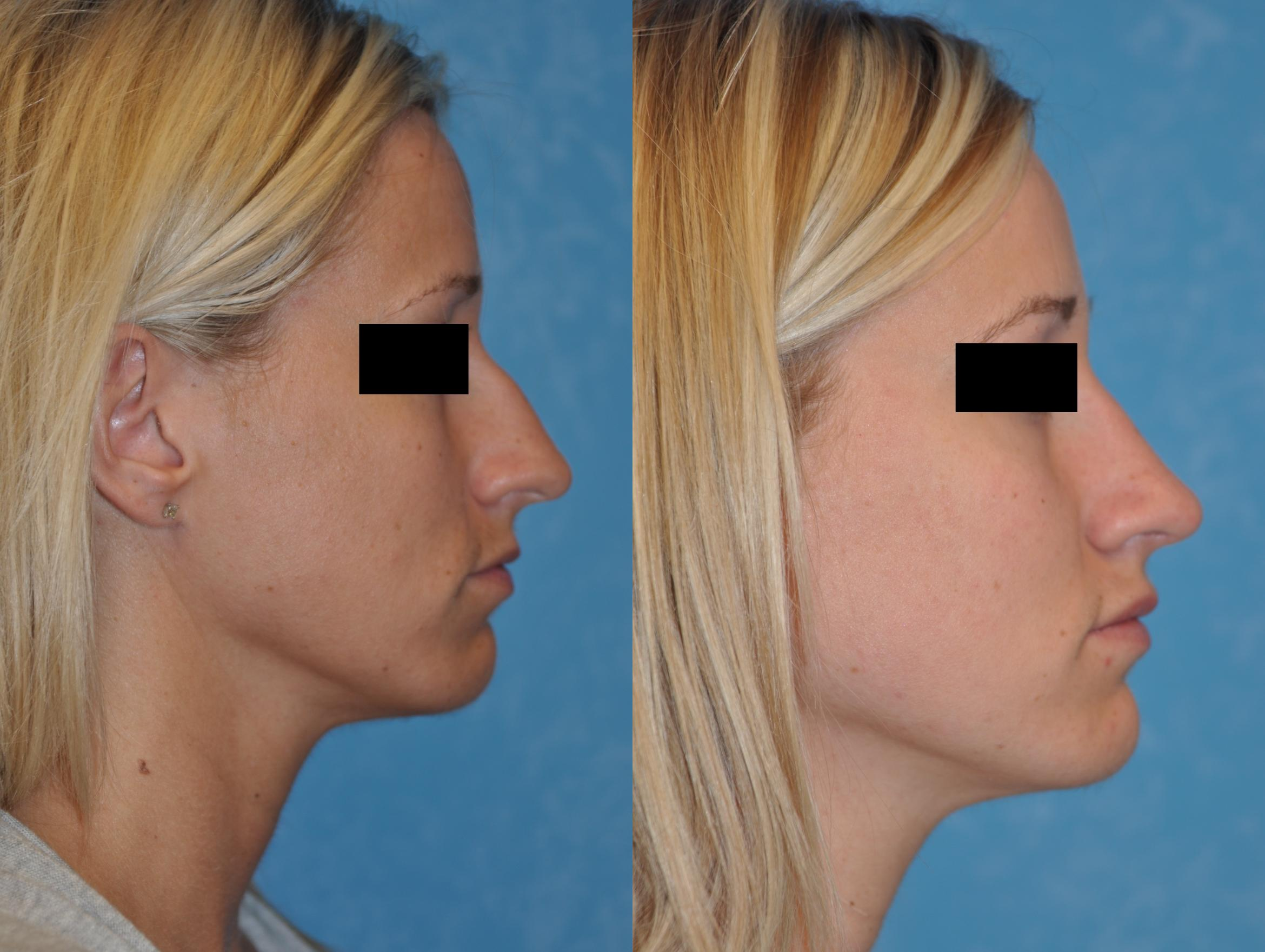 Rhinoplasty Before & After Photo | Toledo, Ohio | Dr. Craig Colville