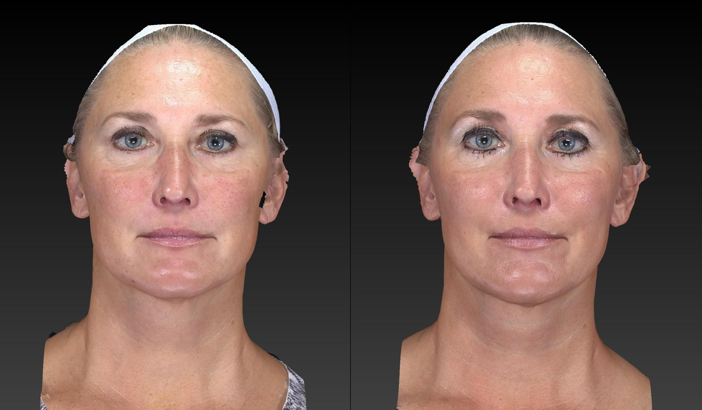 Ultherapy Before & After Photo | Toledo, Ohio | Dr. Craig Colville